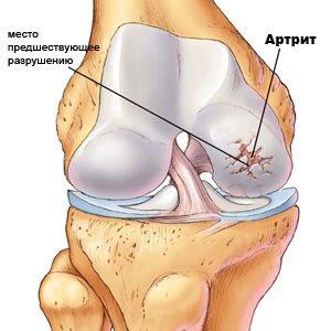 ízületi kezelés diprospan-nal