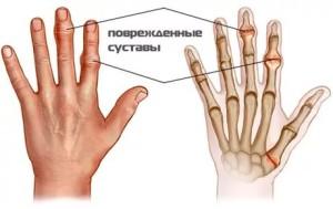 hogyan kezeljük a vállbetegségeket a kéz ízületei miért fájnak