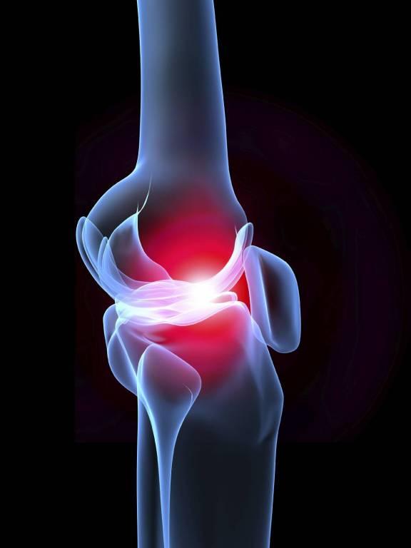 Hip ízületi gyulladás felnőtteknél és gyermekeknél: tünetek és kezelés