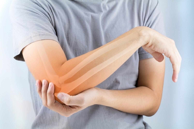 új kezelések az ízületi gyulladás kezelésére amelyből a karok és a lábak ízületei duzzadnak