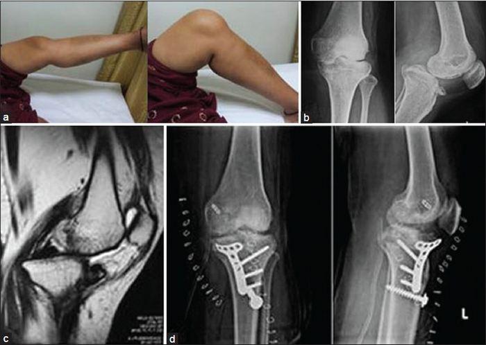 a térd csontvelőjének károsodása