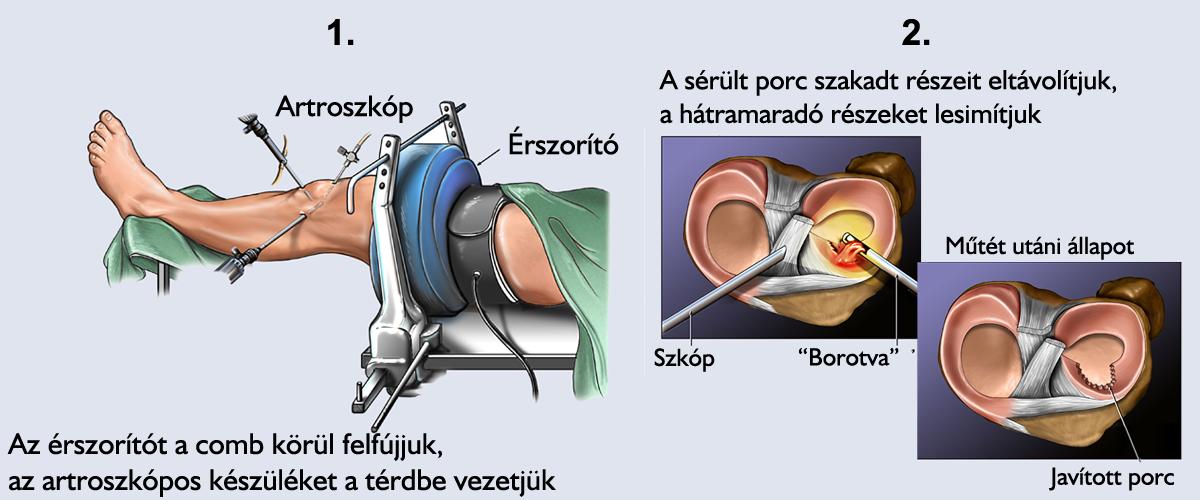 térd sérülés utáni gyógyulás a csípőízület 2. fokú deformáló artrózisa