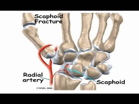 scaphoid scaphoid artrosis kezelése)