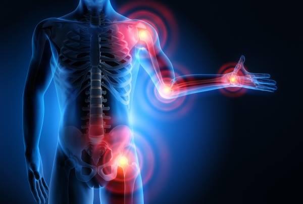 fájhatnak az ízületek a gerinctől