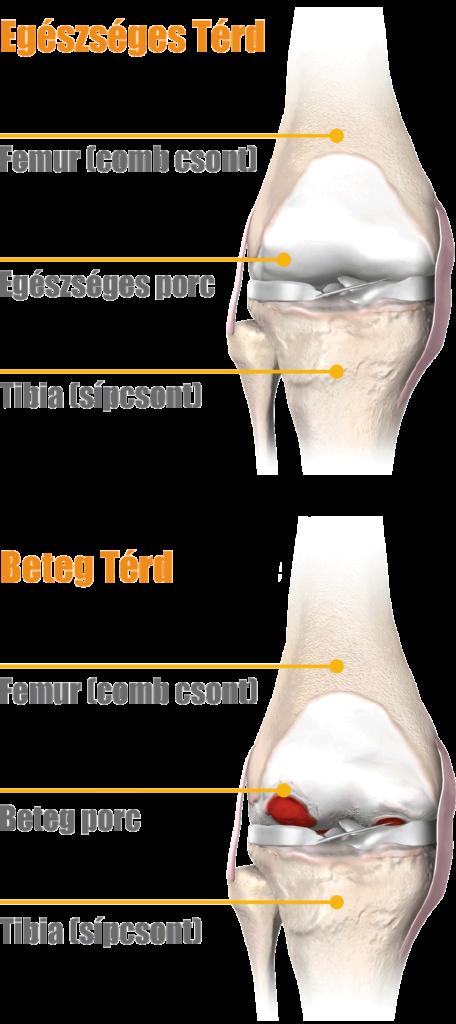 a térd gyulladásos folyamatának kezelése
