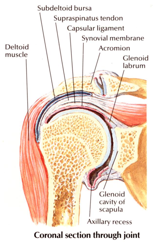 krónikus vállízületi gyulladás