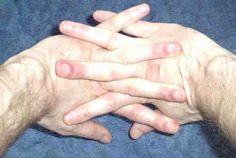 a tenyér artrózisának kezelése)