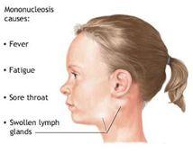 nyirokcsomók ízületi fájdalom mononukleózis