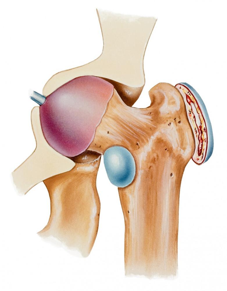 arthrosis kezelés törökországban
