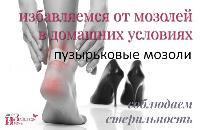 vándorló fájdalom az izmokban és az ízületekben ízületi osteodystrophia kezelés