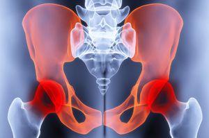 a csípőízület deformáló artrózisának jelei)