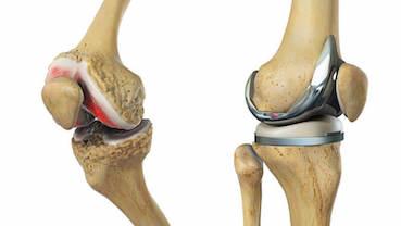 hogyan lehet kezelni az ízület artrózisának számát