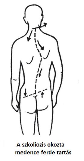 fájdalom a bal csípőízületben, ha ferde hogyan lehet enyhíteni a vállízület törésének duzzanatát