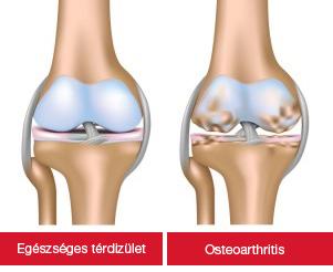 az artrózis sikeres kezelése