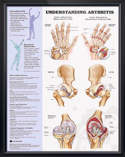 rheumatoid arthritis ízületi röntgenképe)