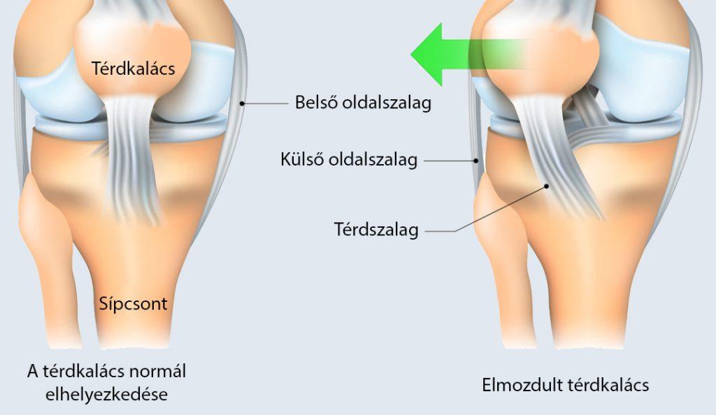 fájó és összeroppant térdízület
