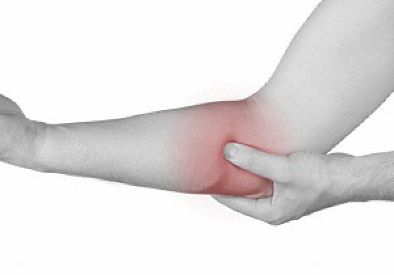A könyökcsukló Epicondylitis