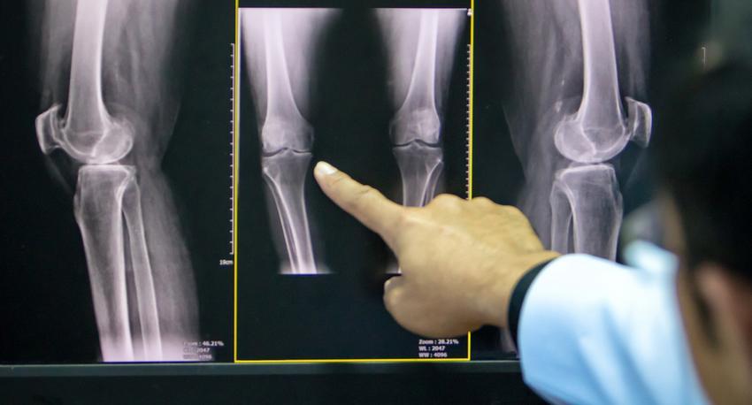 a kezdeti térd artrózis kezelése