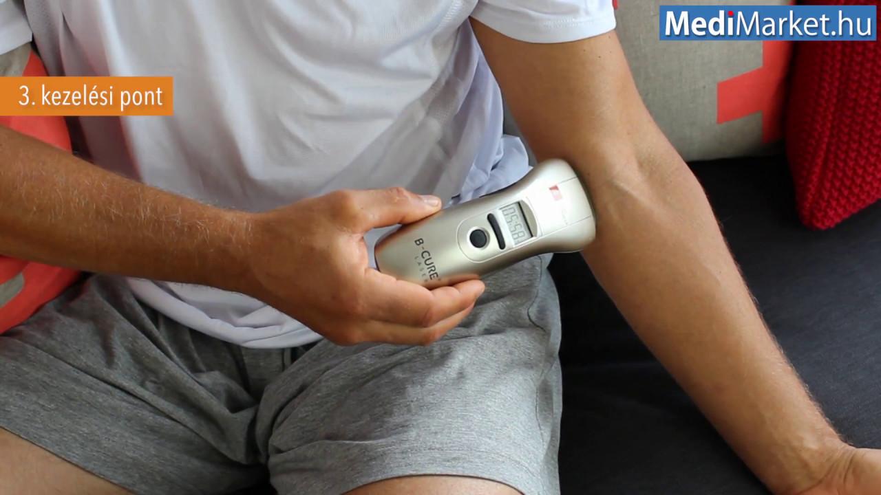 ízületi fájdalom lézeres kezelése