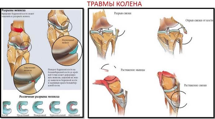 teraflex előrehaladás térd artrózissal
