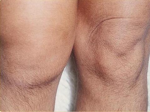 térdízületi kezelés artrózisának súlyosbodása)
