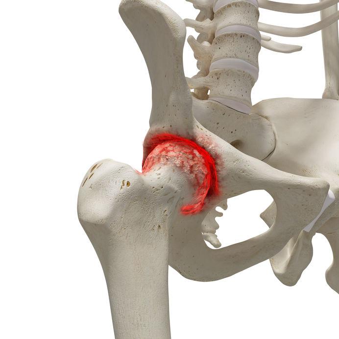 módszerek a csípőízületek artrózisának kezelésére)