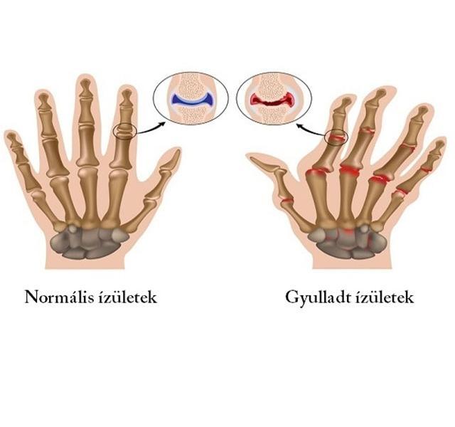 ízületi gyulladások kezelése gyomorfekély esetén elviselhetetlen fájdalom a könyökízületben