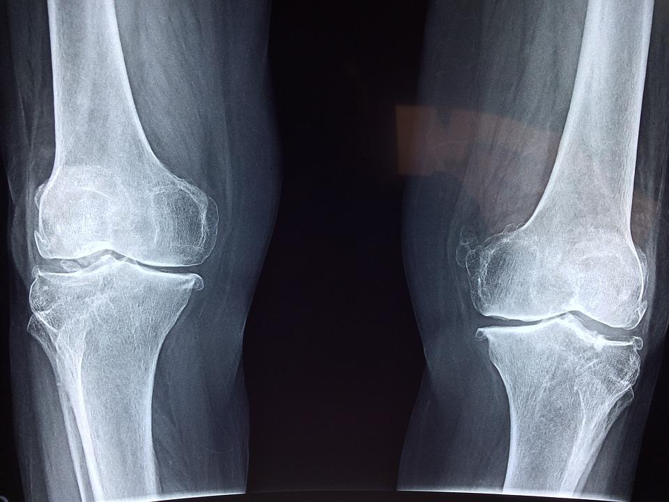 röntgen terápia artrózis kezelésére