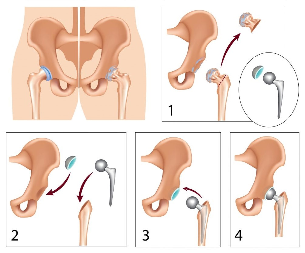 fájdalom a csípőprotézis területén