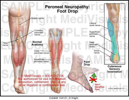 hogyan lehet enyhíteni a lábujjak ízületi gyulladását ízületi fájdalomcsillapítások blokádja