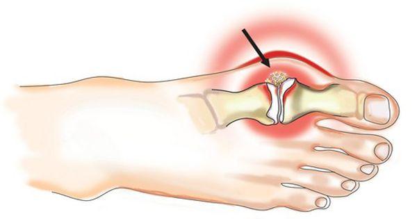 a térdkezelő gyógyszerek deformáló artrózisa