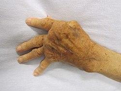 hogyan kezelhető a rheumatoid arthritis gyógyszeres kezeléssel)