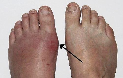 fájdalom a csípőízületben járás közben okozza közös mézeskalács