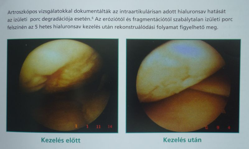 fereydona batmanghelidgea hát- és ízületi fájdalmak gerinc és ízületek anastasia semenova kezelése