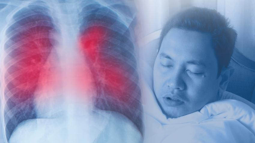 ízületi és izomfájdalom és vírus