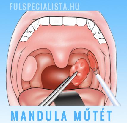 mandula ízületi fájdalom háti csontritkulás kezelésére szolgáló kenőcsök