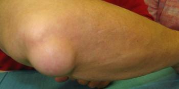 a könyökízület duzzanata kezelést okoz ízületi nyomás és fájdalom