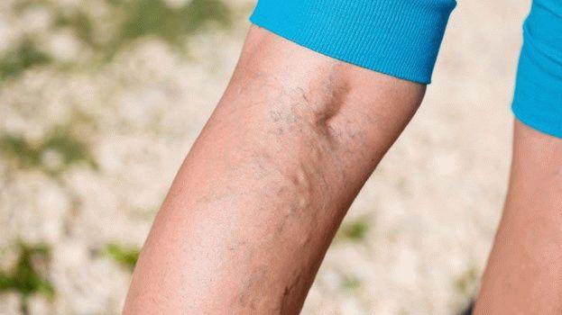 nehézség a lábakban a csípőízületben)
