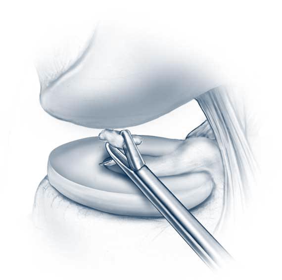 Artroszkópos térdműtét