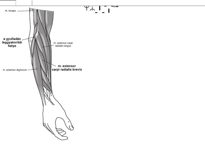 A bokaízület arthrosisának deformálása
