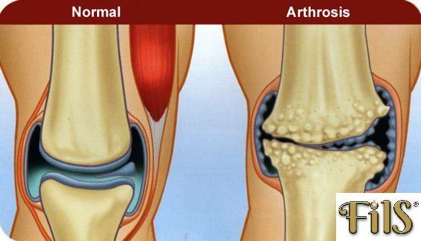 fogyni térd artrózisával
