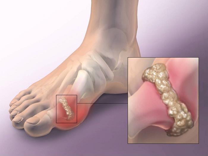 ízületi törés a sarok törése után mit kell tenni fájdalom a sarokban és a lábak ízületében