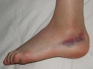Hogyan kezelhetőek a végtagot ért sérülések? | Medostore hírek