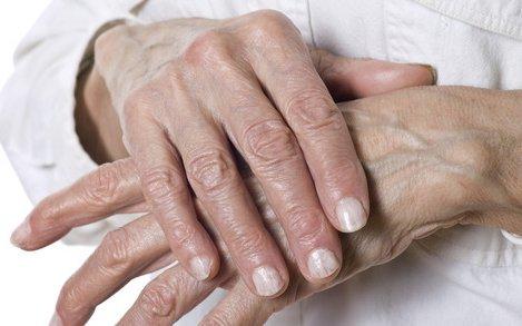 ízületi gyulladás enyhíti a fájdalmat