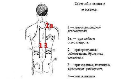 mi a csípőízületek artrózisa 2 fokkal