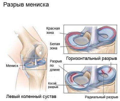 térdízületi pék ciszta kezelése hogyan enyhíthető a lábízület gyulladása