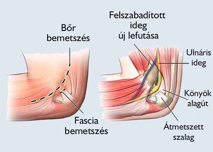 könyök alagút szindróma műtét után