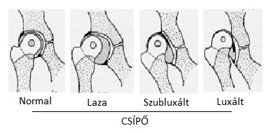 csípőízületi deformitás diagnosztizálása