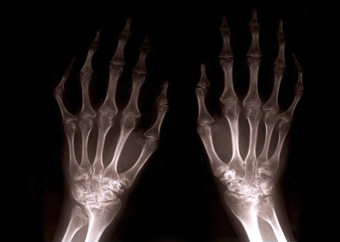 rheumatoid arthritis hogyan kell kezelni)