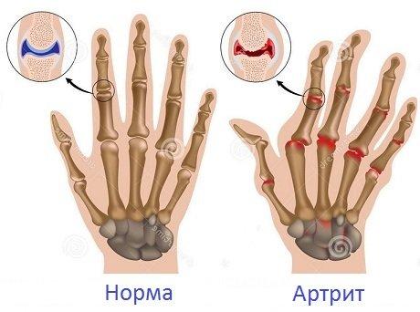 doa hogyan kell kezelni egy kézízület